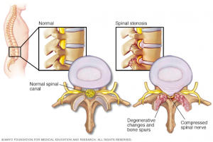 A graphic illustrating a healthy lumbar spine and a not-so-healthy lumbar spine.